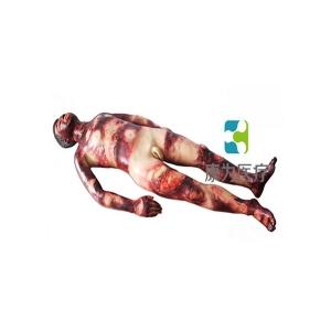 """""""康为医疗""""成人全身整体烧烫创伤急救护理训练操作模型"""
