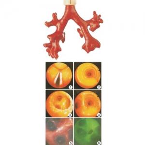 """""""康为医疗""""CLA9/8荧光气管支气管树模型(消化内科技能模型)"""
