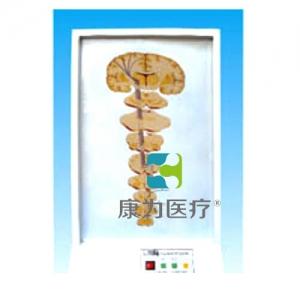 """""""康为医疗""""一般内脏感觉传导通路电动模型"""