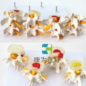"""""""康为医疗""""4阶段病态腰椎比较模型"""