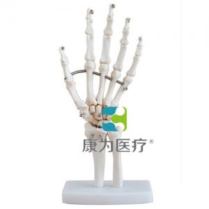 """""""康为医疗""""手关节模型"""