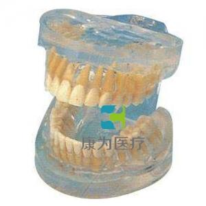 """""""康为医疗""""透明成人牙模型"""