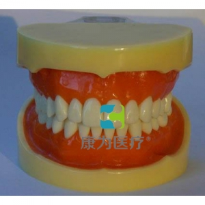 """""""康为医疗""""标准牙颌模型B"""