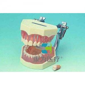 """""""康为医疗""""可拆成人牙颌模型"""
