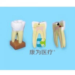 """""""康为医疗""""上颌三根龋齿模型"""
