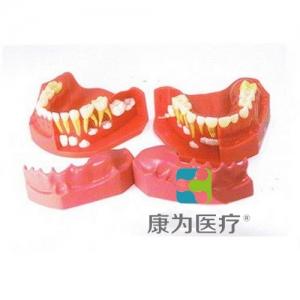 """""""康为医疗""""乳牙交替模型"""
