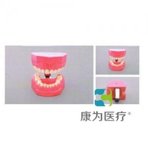"""""""康为医疗""""儿童刷牙模型"""