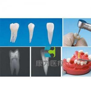 """""""康为医疗""""带髓腔根管牙体模型"""