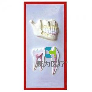 """""""康为医疗""""牙列与牙解剖浮雕模型"""