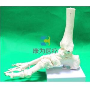 """""""康为医疗""""自然大脚关节模型"""