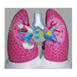 """""""康为医疗""""吸烟者病理肺模型"""